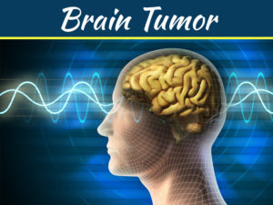 Brain Tumor: 9 Signs And Symptoms For Early Identification