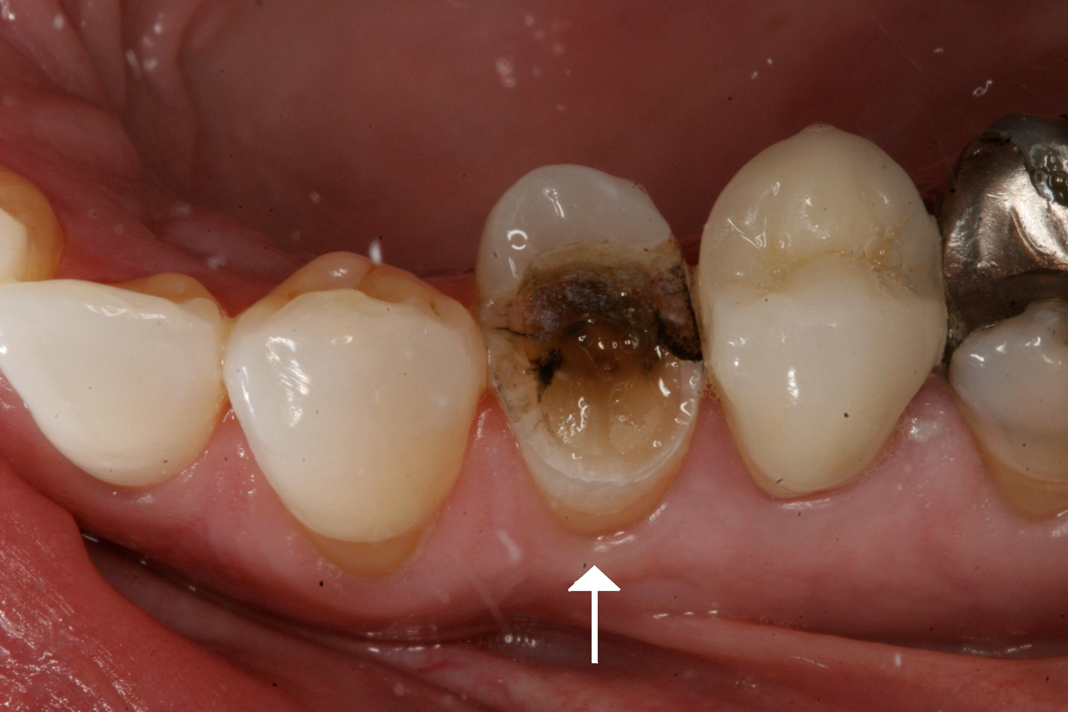 Fractured Tooth