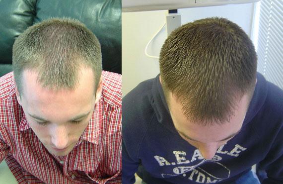 Hair Therapies