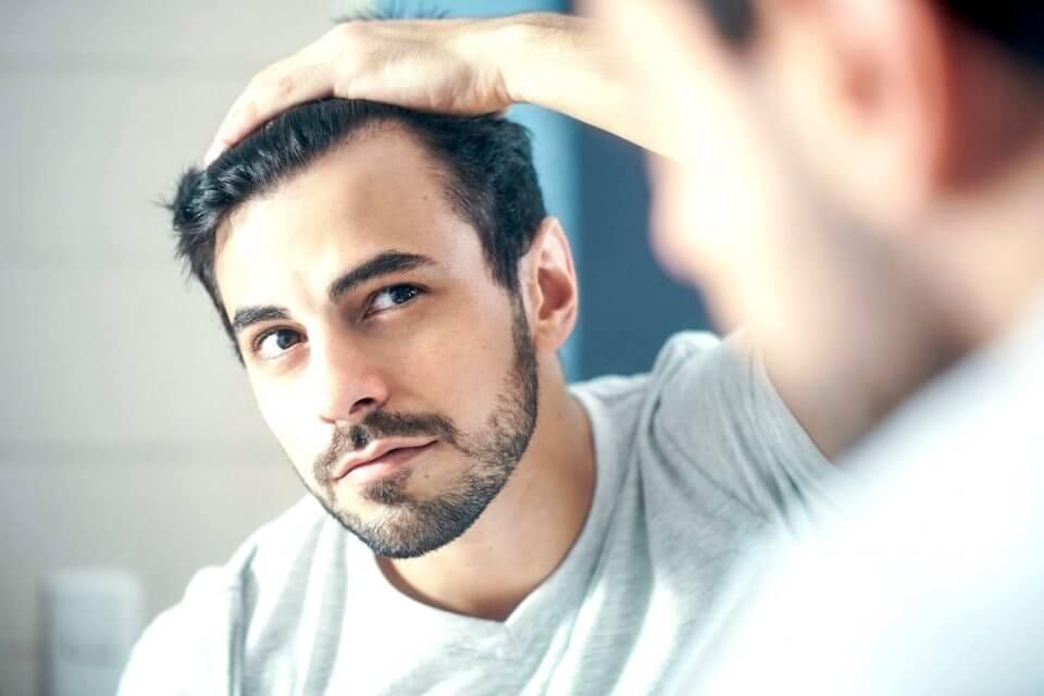 A Receding Hairline