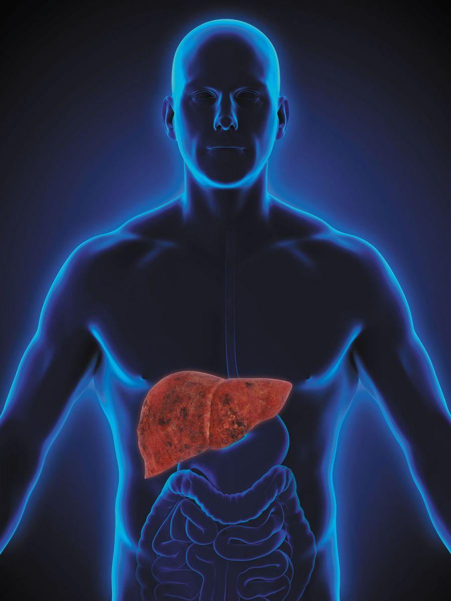 What Is Hepatic Disease?